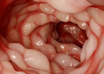 Crohn Hastalığı Nedir? Belirtileri ve Tedavisi