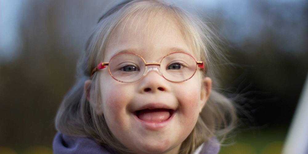 Down Sendromu Nedir? Teşhisi ve Belirtileri