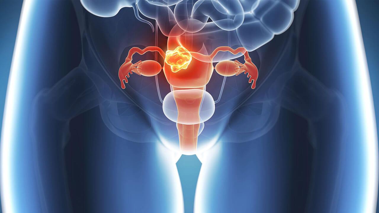 Rahim Kanseri Belirtileri Ve Tedavisi
