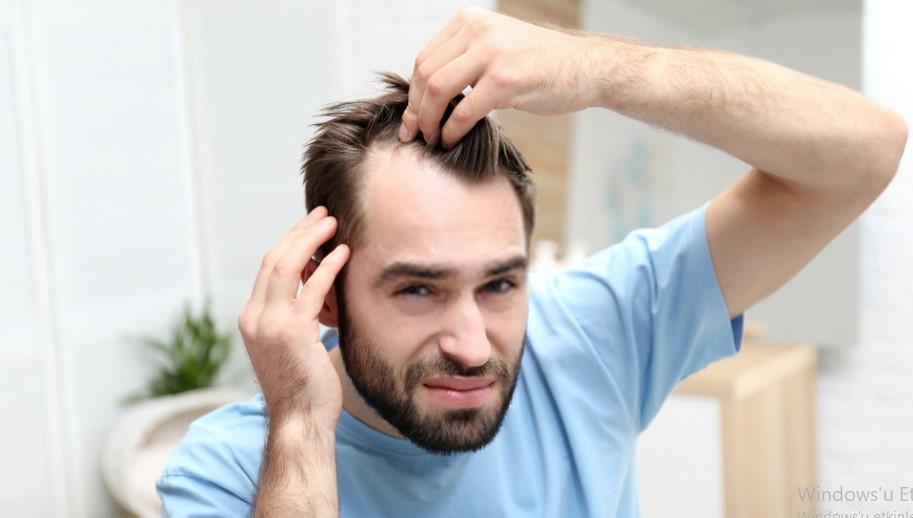 Saç Koparma Hastalığı -Trikotillomani- Nedir?