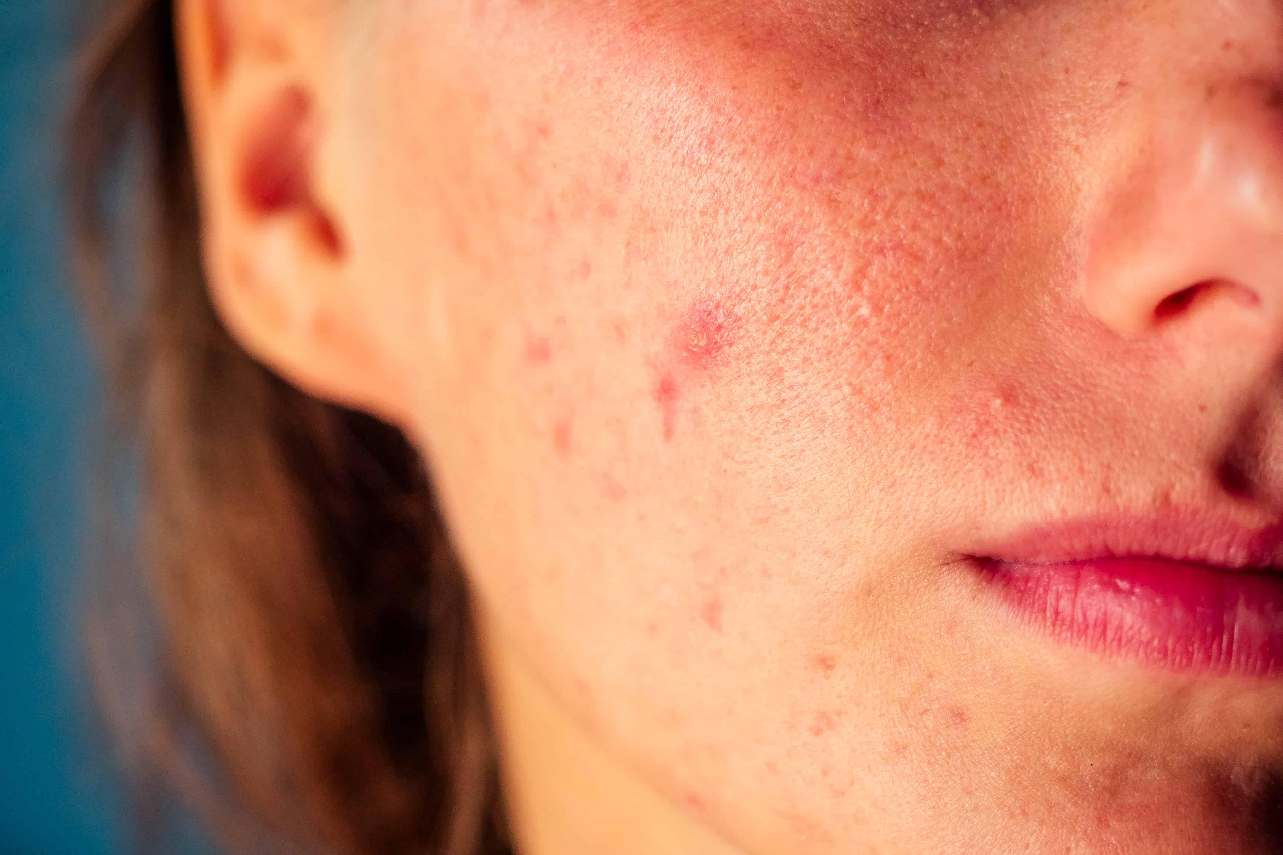 Yaygın Cilt Hastalıkları Nelerdir?